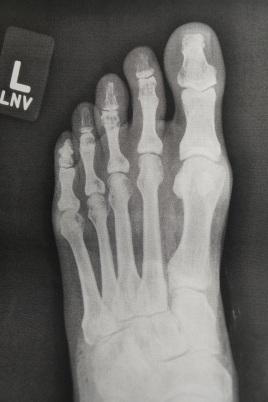 hmr-toe-fixed